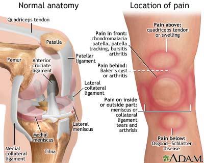 صدمات ناشی از استفاده بیش از اندازه از زانو ، حرکات اصلاحی برای زانو,زانو درد